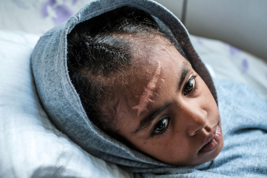 Arsema Berha, 9-years-old, rests on her bed at the Ayder Referral Hospital in the Tigray capital Mekele on February 25, 2021, after being injured during fighting between the Tigray People's Liberation Front (TPLF) which fell after Ethiopian Prime Minister deployed troops and warplanes to oust the TPLF late last year. - Arsema lost a hand and suffered several injuries during the heavy artillery shelling of her village of Alaje, Southern Tigray, where her family lost their home, one sister was killed and another, who was injured and treated at the same hospital. According to her mother they were first taken to the Mayo Hospital, and from there transported to Mekele by the Red Cross, adding that the only military presence in that area were the Ethiopian Federal Forces. (Photo by EDUARDO SOTERAS / AFP) (Photo by EDUARDO SOTERAS/AFP via Getty Images)
